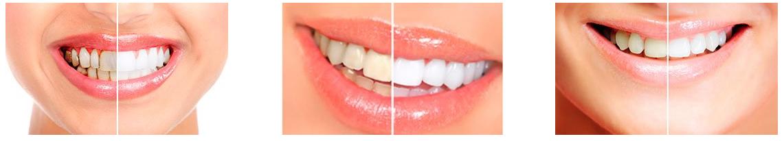 Dental White Strips - форум - коментари - мнения - отзиви - бг мама