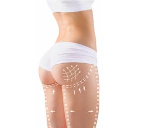 Perfect Body Cellulite - коментари - мнения - отзиви - бг мама форум