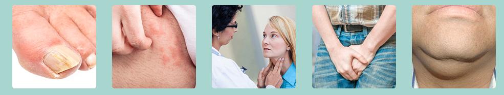 Imunoplant - цена - българия - аптеки