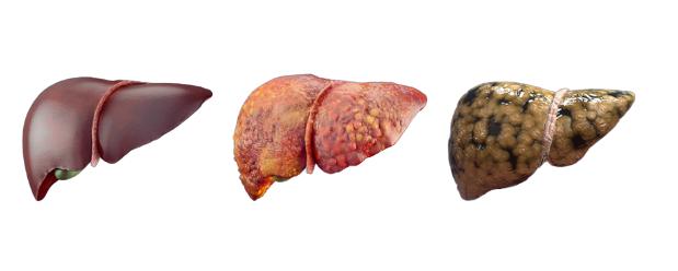 Liver cleanse - състав